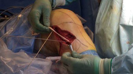 AFLYST : YODA's Kursus I Ortopædkirurgiske Adgange – Nord